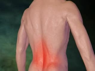 Low Back Pain Animation   Causes, Treatments